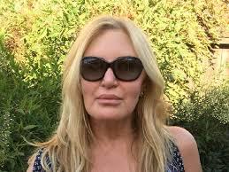 Carol Blind Dermal Fillers Leaves Woman Blind In One Eye