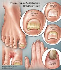 toenail fungus home remedies for better looking nails fungal nail infection dermatology jama the jama network