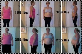 welcome to wls4 betterlife weight loss surgery in mexico