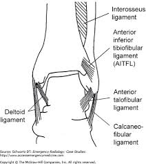 Posterior Inferior Tibiofibular Ligament Chapter Iv 1 Ankle Fractures Emergency Radiology Case Studies