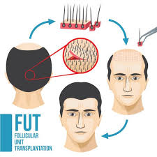 different types of receding hairlines royalty free receding hairline clip art vector images