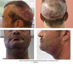 Hair Loss From Chemo Hair Loss Forum Body Hair Fue Nw6 Patient After Chemo Therapy