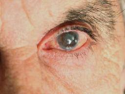 Cataract Leads To Blindness Due To Astigmatism Causes Types Symptoms And Treatments