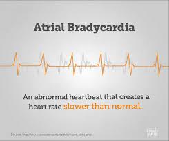 atrial bradycardia get smart about afib terms you should know