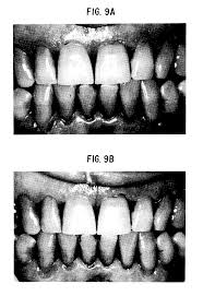 patent ep0511782a1 polymer composition for tooth bleaching and