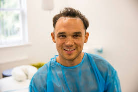 coronation street hair transplants gareth gates undergoes hair transplant after years of insecurity