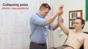 cardiovascular examination osce guide geeky medics
