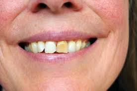 Groupon Teeth Whitening Chicago Stained Discolored Teeth Stained Discolored Teeth