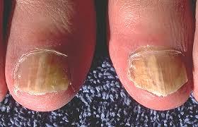 toenail fungus treatments archives sterishoe