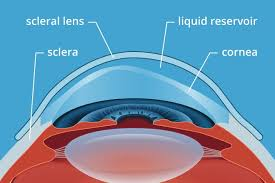 Contacts For Color Blindness Correction Scleral Contact Lenses For Keratoconus And Irregular Corneas