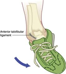 Tibiofibular Ligament Injury Ankle Sprains And Instability Medical Clinics