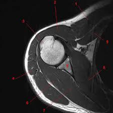 Mri Sectional Anatomy Atlas Of Shoulder Mri Anatomy