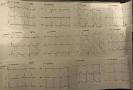 dr smith u0027s ecg blog
