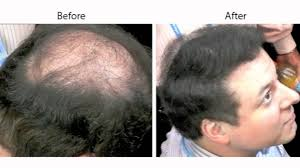 hair weaves for balding men caboki conceals male pattern baldness youtube