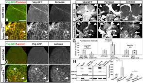 the extracellular metalloprotease adamts a anchors neural lineages