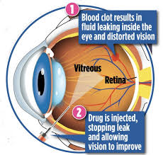 Temporary Partial Blindness A Poke In The Eye Can Save Your Sight Blindness Caused By Blood