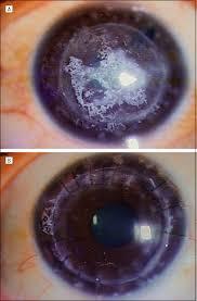 Map Dot Dystrophy Chitra Kannabiran Phd L V Prasad Eye Institute Hyderabad