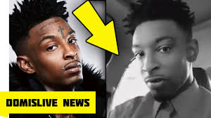 did 21 savage get his tattoos removed