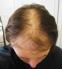 hair growth supplements for women revita locks trichotillomania hair pulling disorder trichotillomania