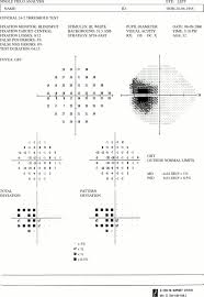 Finding Your Blind Spot In Your Eye Unilateral Enlargement Of The Blind Spot A Diagnostic Dilemma