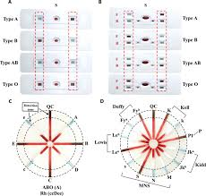 a dye assisted paper based point of care assay for fast and