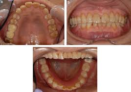 allergic reaction to titanium allergic contact dermatitis caused by titanium screws and dental