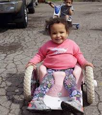 What Age For Bumbo Chair With Spina Bifida Inspires Family To Make Wheelchairs Today Com
