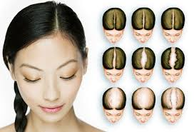 hair styles for women with center bald spots women s hair loss pictures causes treatments and more