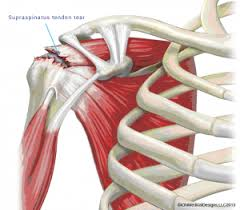 Subscapularis And Supraspinatus Rotator Cuff Tear Joint And Spine Solutions
