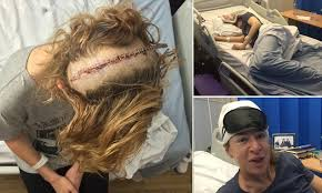 can you color hair after brain surgery katie hopkins welcome to the scars i will happily wear with pride