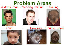 different types of receding hairlines hair design for men ppt video online download