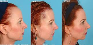 neograft recovery timeline neograft hair transplant boise silk touch med spa