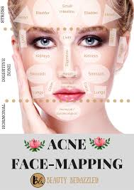 Face Mapping Pimples Acne Face Mapping What Does Your Acne Tell You Beauty Bedazzled