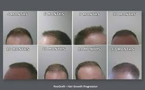 hair transplant month by month pictures neograft hair transplant results with automated fue hair restoration