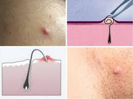 how to remove engrown hair onunderwear line 84 best goodbye to ingrown hairs images on pinterest beauty