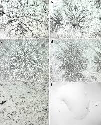ferning pattern in spanish ferning morphology of ca125 antigen by light microscopy x 100 a