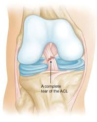 Sho Acl which is the best hospital for acl surgery in delhi quora