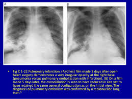 Atlas Of General Surgery 1 Chest Pattern Clinical Imagaging An Atlas Of Differential Daignosis U2026