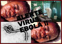 Scary Pictures Of Ebola Virus
