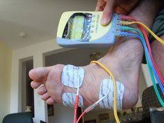 Planters Fasciitis Surgery by Plantar Fasciitis Surgery Is A Last Resort To Treating Heel Pain