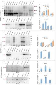 t box3 is a ciliary protein and regulates stability of the gli3