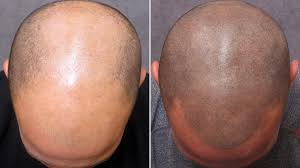 baldness can go with a mediazink