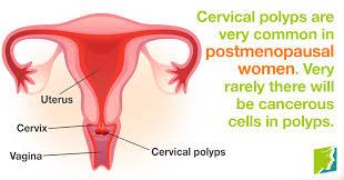 woman s virgina 6 reasons for postmenopausal vaginal bleeding