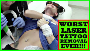 worst laser tattoo removal before u0026 after youtube