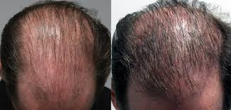 prp for hair loss hair growth injection in toronto spamedica