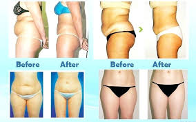 lipo light laser treatment reviews best lipo light laser f48 on stylish image collection with lipo