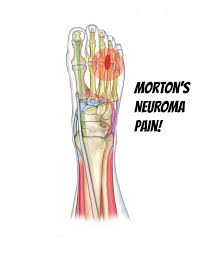 Sole Of The Foot Anatomy Morton U0027s Neuroma Self Help Tips Treatment And Prevention From