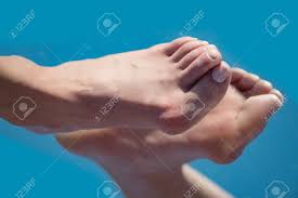 foot deformity images u0026 stock pictures royalty free foot