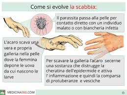 acari materasso rimedi cos è sintomi terapia contagio ed incubazione dell acaro