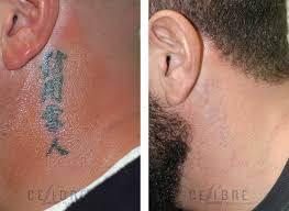 100 50 cent tattoos removed before and after tattoo fanatic